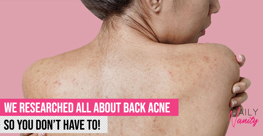How to get rid of back acne and prevent it from recurring once in 2020